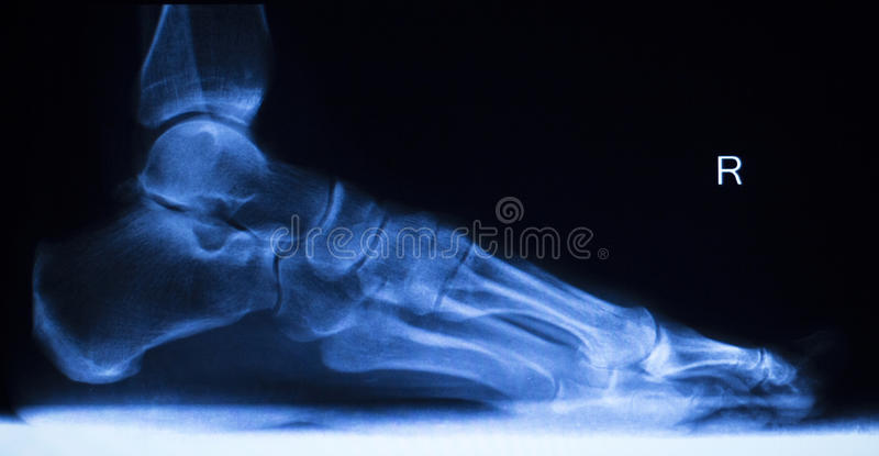 Stopy i palec u nogi urazu promieniowania rentgenowskiego obraz cyfrowy fotografia stock