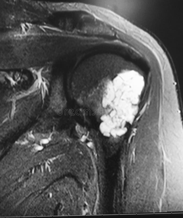 Stor chondroid organskadamriundersökning royaltyfri fotografi