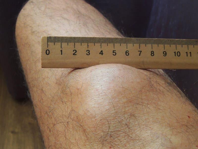 Stor lipoma på benet av en mellersta åldrig man fotografering för bildbyråer