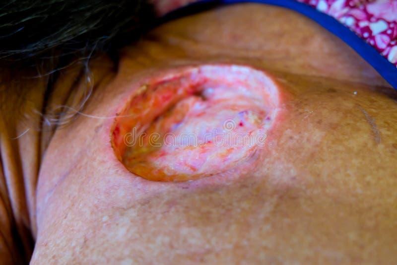 Stor sår på kroppen royaltyfria bilder