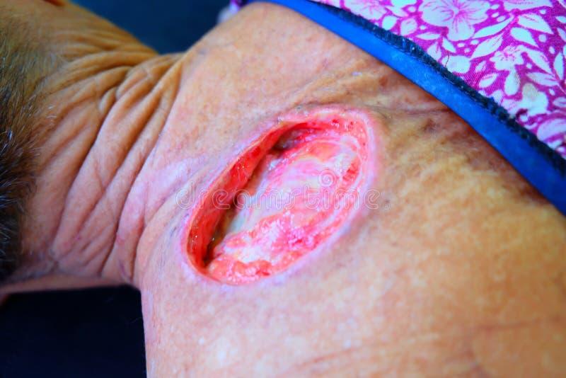 Stor sår på kroppen fotografering för bildbyråer