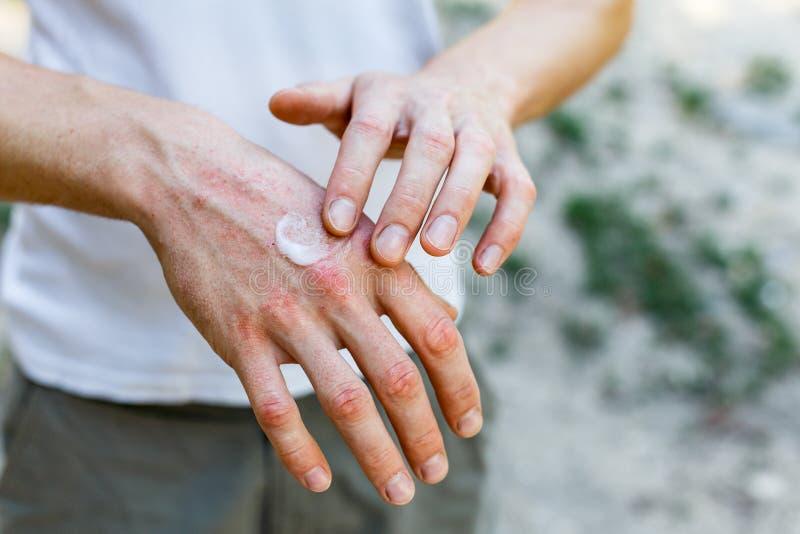 Stosować emollient suszyć płatkowatą skórę w traktowaniu łuszczyca, egzema i inni suchej skóry warunki jak, biały zdjęcie stock