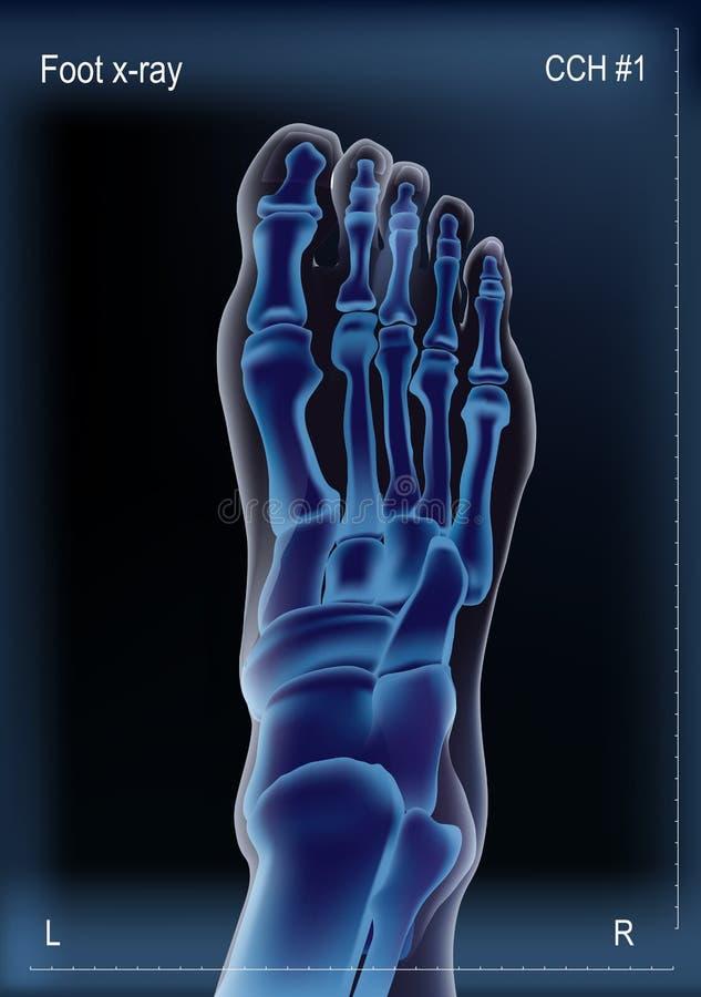 Stråle x av ben av fot vektor illustrationer