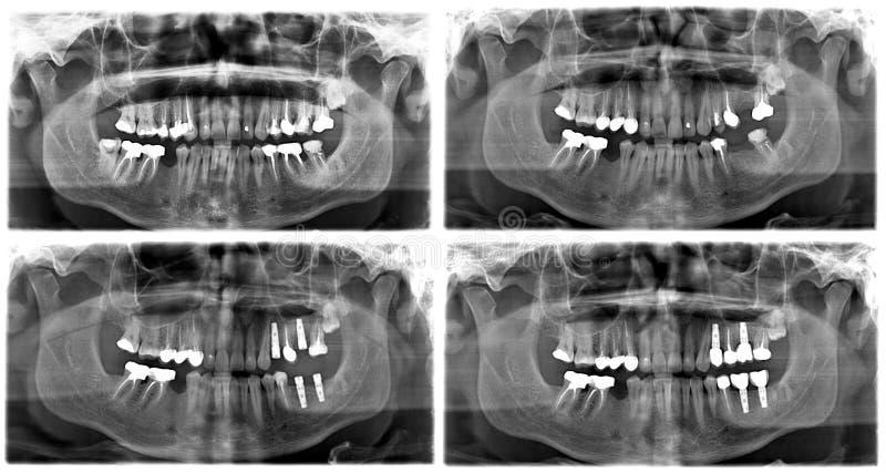 Stråle x av tänder arkivfoton