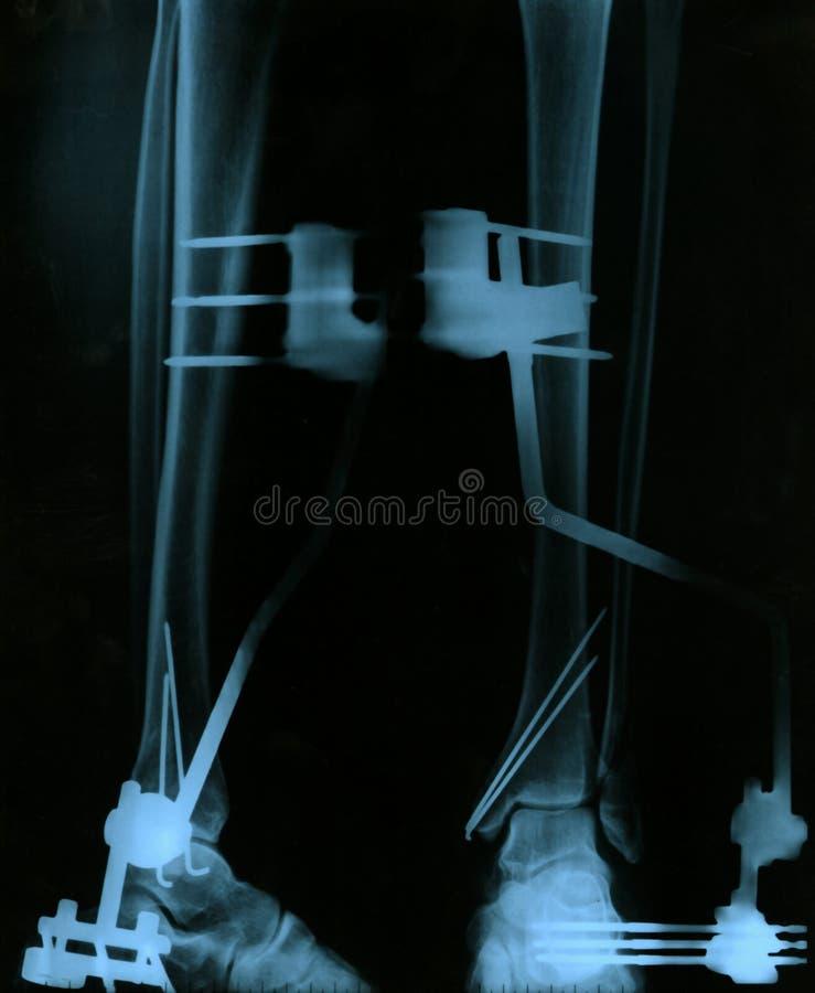 stråle för ntgenbild r x royaltyfri fotografi