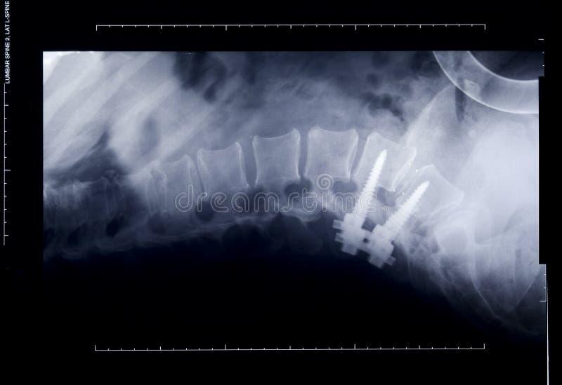 stråle reparerad rygg surgically x royaltyfri fotografi