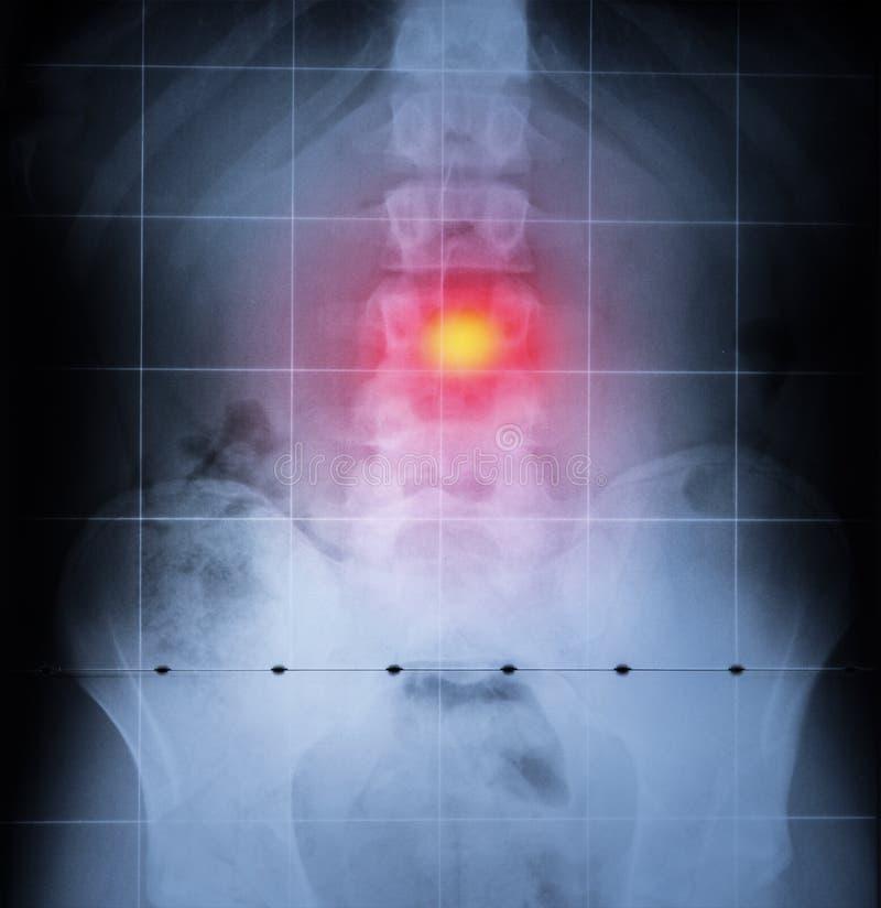 Stråle x, rygg och bäcken av människokroppen Baksida smärtar markerat i rött royaltyfri fotografi