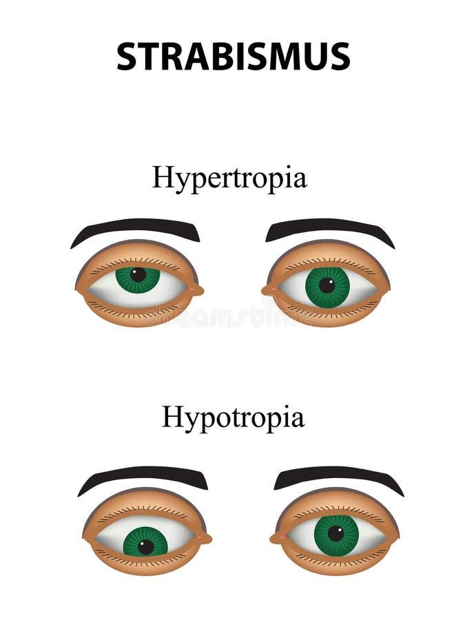 Strabismo Hypertropia Hypotropia Infographics Illustrazione di vettore su fondo isolato illustrazione vettoriale