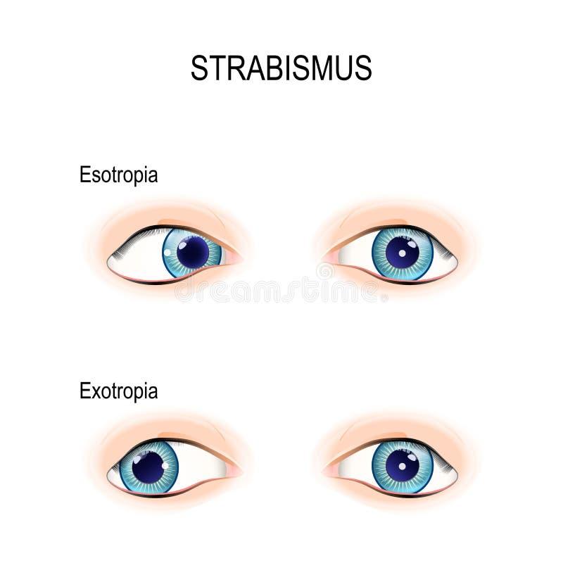 Strabismus пересеченные глаза иллюстрация вектора