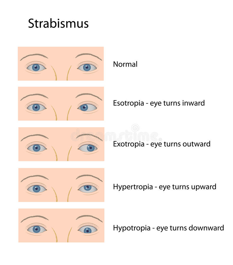 Strabismus royalty free illustration