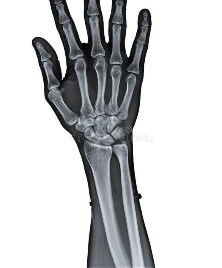Ungewöhnlich Hand X Ray Anatomie Fotos - Menschliche Anatomie Bilder ...