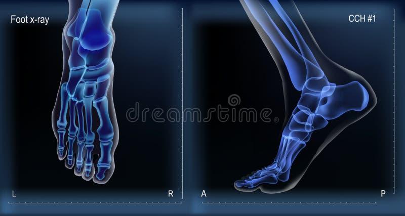 Strahl der Mittel- und Draufsicht x von den Knochen, die vom Fuß sind vektor abbildung