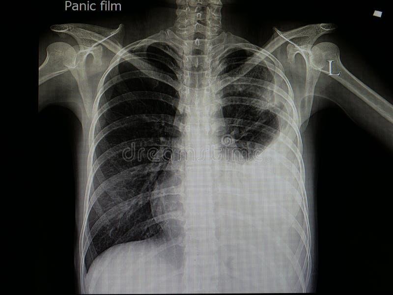 Strahl x des Patienten mit Pneumonie und linkem Mehrzahl- Erguss lizenzfreies stockfoto