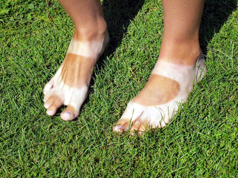 Download Strangely Tanned Legs On The Lawn Stock Photo - Image: 26352964