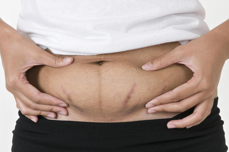Stretch marks, pregnancy stock photo