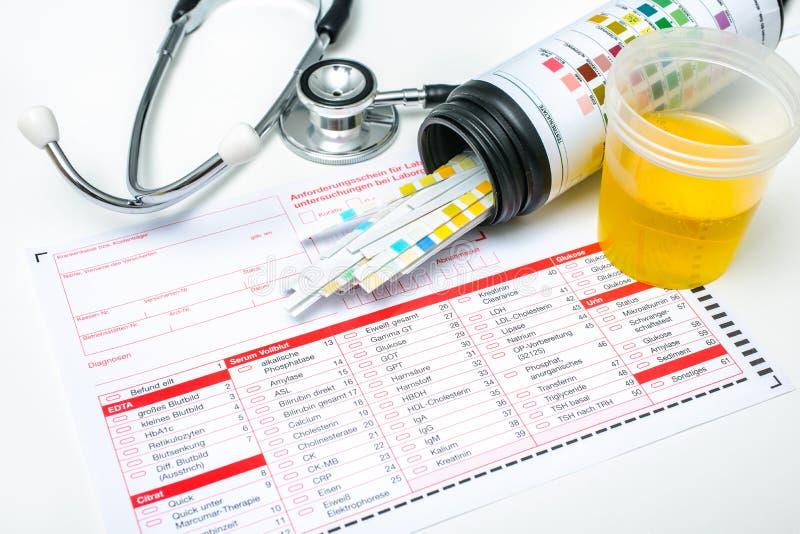 Strisce dell'esame delle urine immagini stock