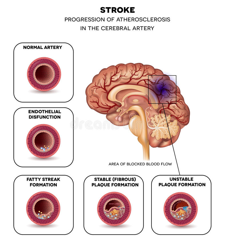 Stroke in the brain artery stock vector. Illustration of ...
