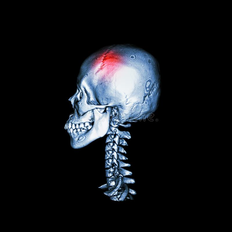 Stroke . CT scan with 3D image of human skull and cervical spine .lateral view . vector illustration