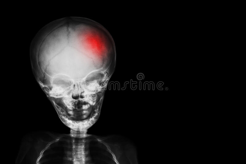 Stroke . film x-ray skull and body of child with red color at head . Neurological concept.  royalty free stock photo