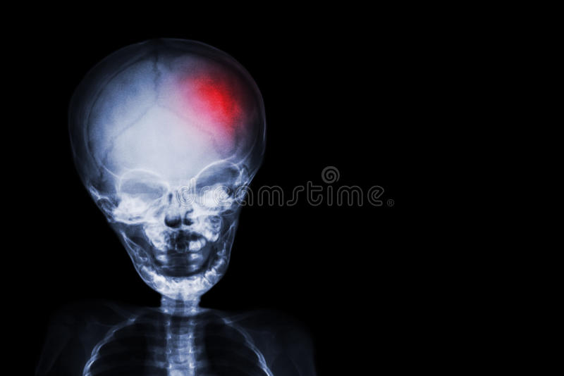 Stroke . film x-ray skull and body of child with red color at head . Neurological concept.  royalty free stock photography