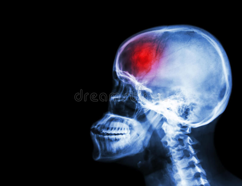 Stroke . film x-ray skull and cervical spine lateral view and stroke . cerebrovascular accident . blank area at left side . royalty free stock images