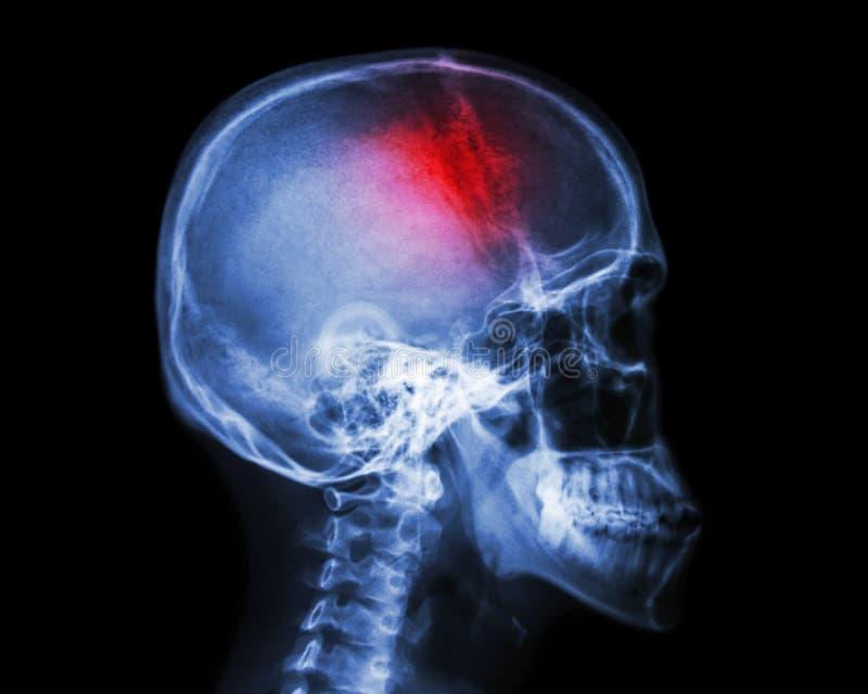 Stroke stock image. Image of brain, anatomy, cerebrum - 81132635