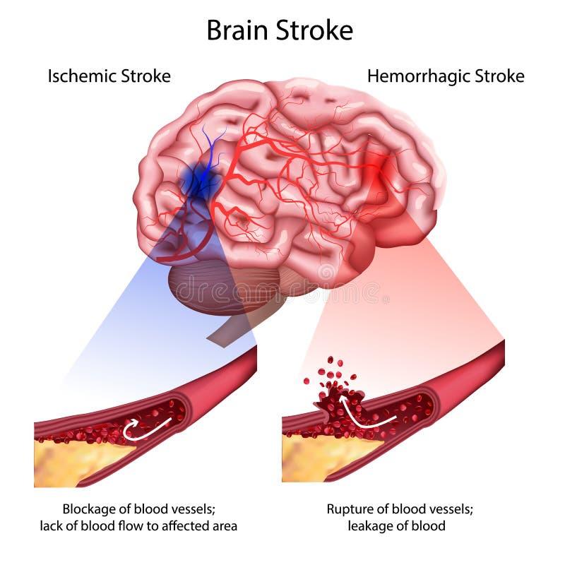 Stroke types poster, banner. Vector medical illustration. white background, anatomy image of damaged human brain. Blocked and ruptured blood vessels. stroke royalty free illustration