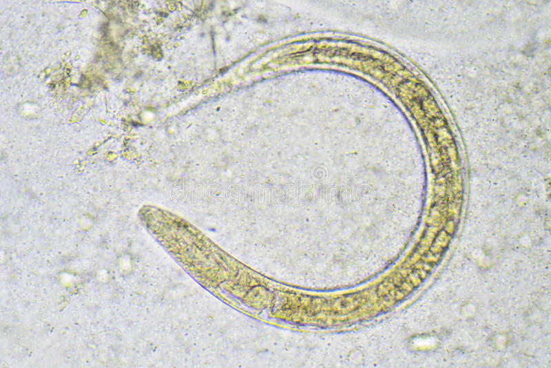Strongyloides stercoralis obraz royalty free