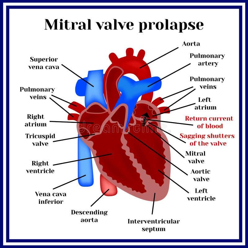Structure de coeur Prolapsus valvulaire mitral Pathologie cardiaque illustration stock