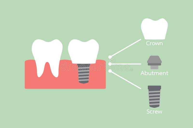 Structure de l'implant dentaire avec toutes les pièces démontées, couronne, butée, vis illustration libre de droits