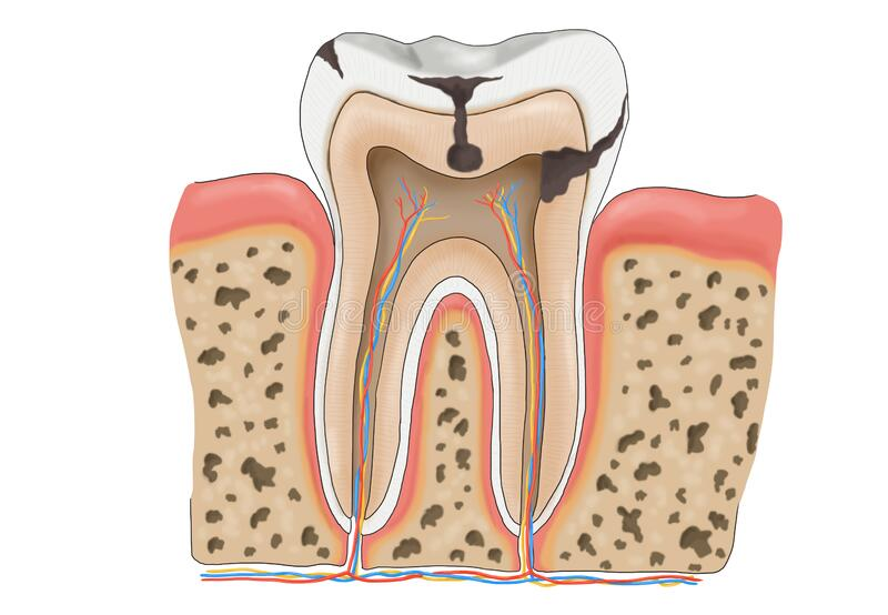 Structure of a decayed tooth stock image