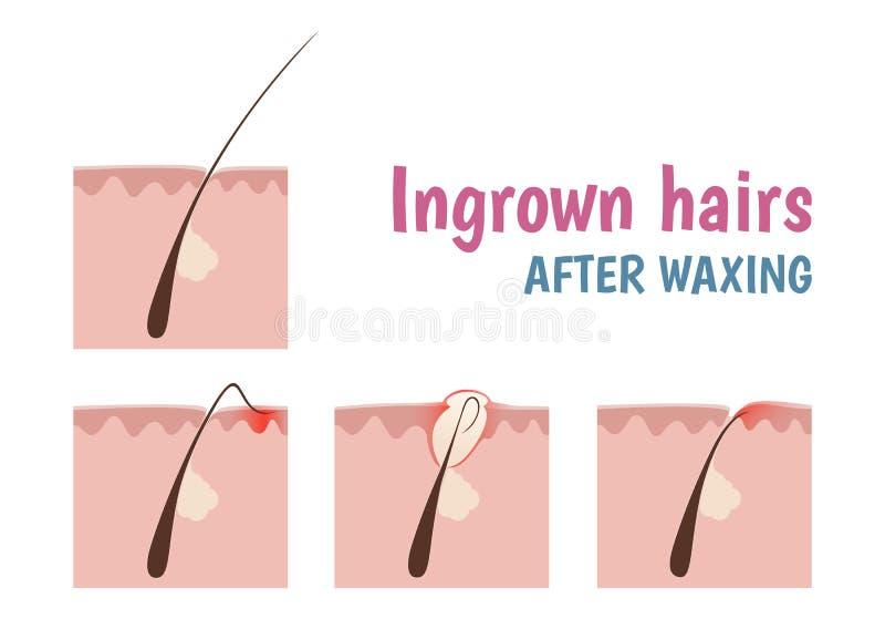 Reduce Chin Hair Growth Naturally