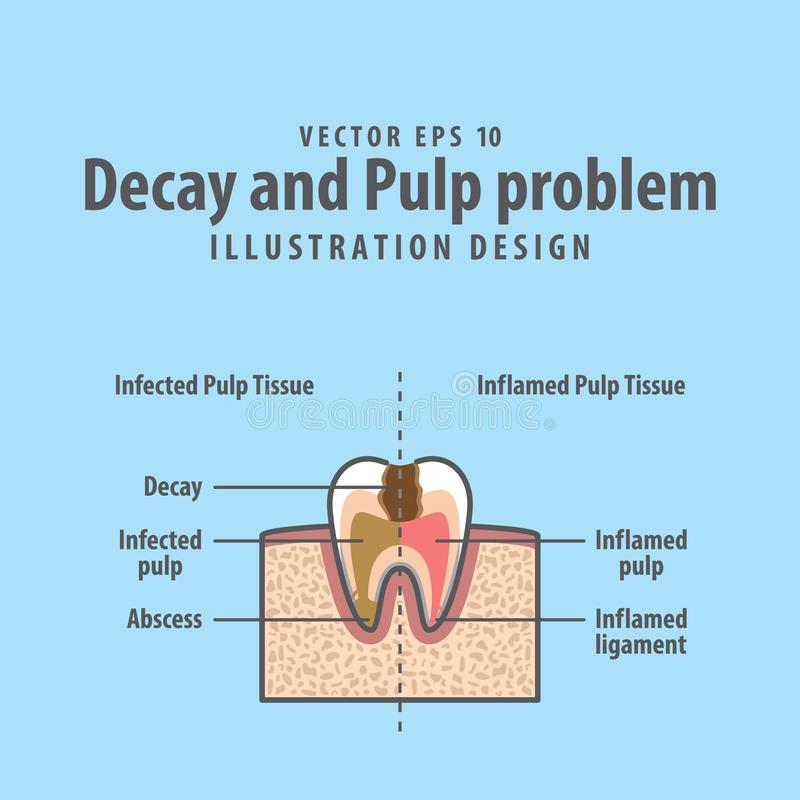 Structure en coupe de problème de délabrement et de pulpe à l'intérieur de dent illustration de vecteur