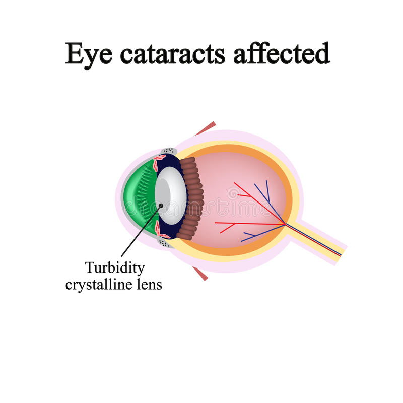 The structure of the eye. Eye cataracts affected. Violations occur when a cataract vector illustration