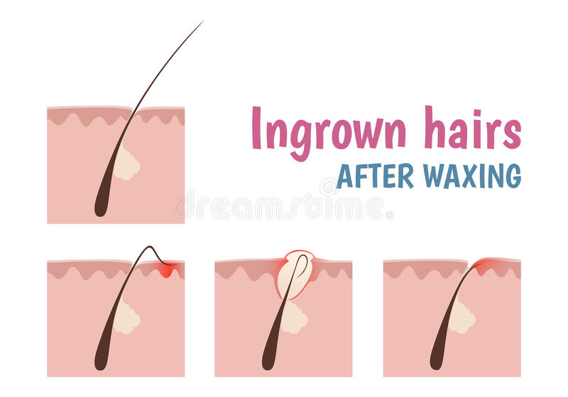 structure of the hair follicle stock vector illustration