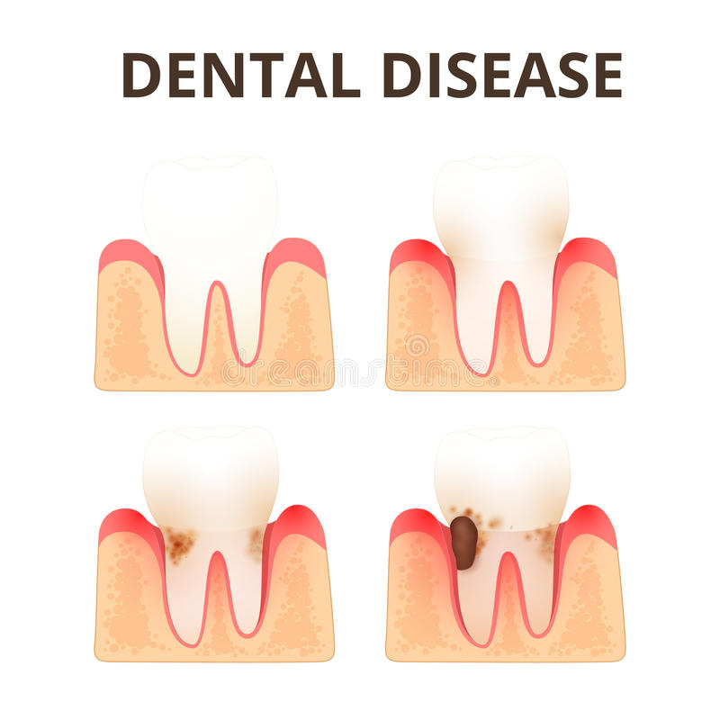 Structure of human teeth. The development of dental disease, plaque and calculus stock illustration