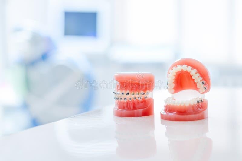Strumento ortodontico del dentista e del modello - modello dei denti di dimostrazione delle variet? di sostegno o di gancio ortod fotografia stock