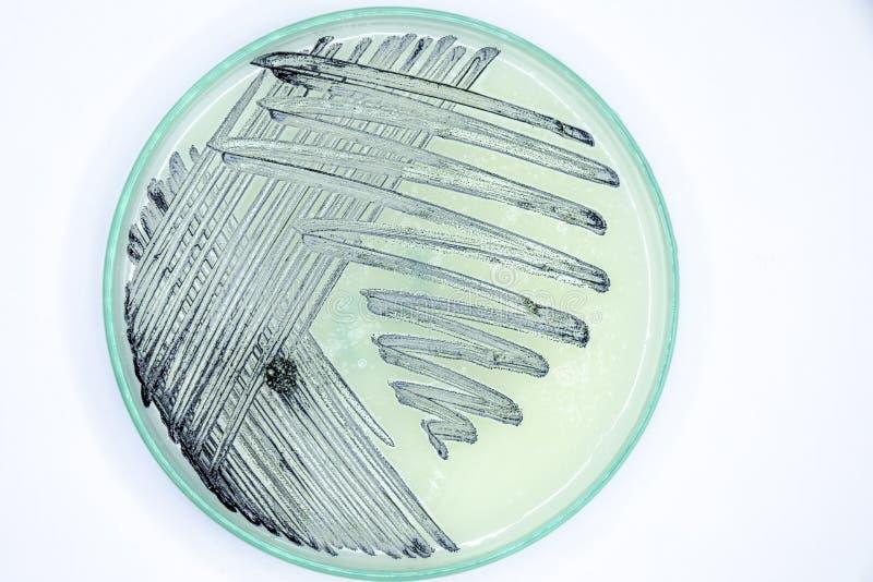 Studien-Kolonieneigenschaft von Strahlenpilzen, von Bakterien, von Hefe und von Form auf selektiven Medien von den Bodenproben stockfoto
