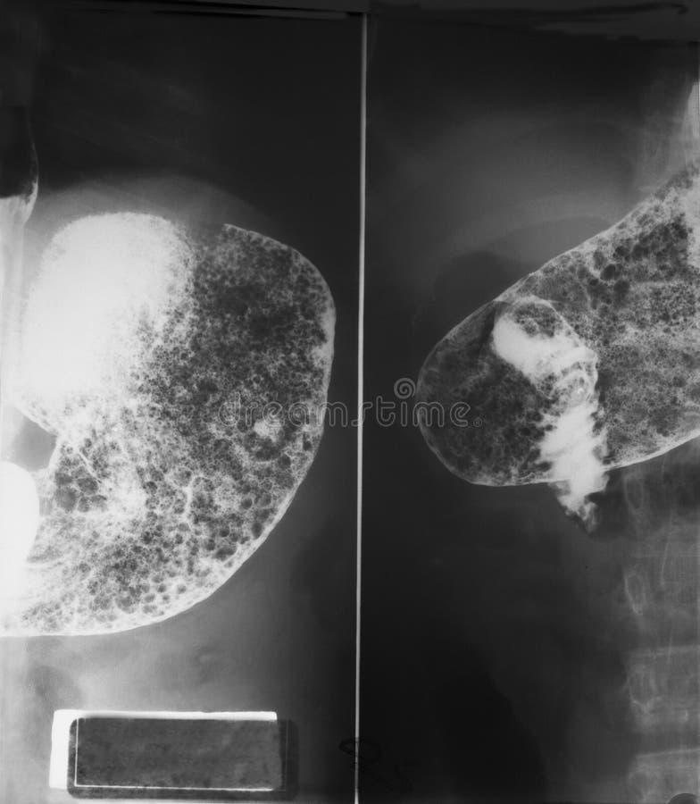 Studio gastrointestinale superiore (UGI) su un 21 anno donna, fine su allo stomaco e prima parte dell'intestino tenue entramba ant fotografie stock