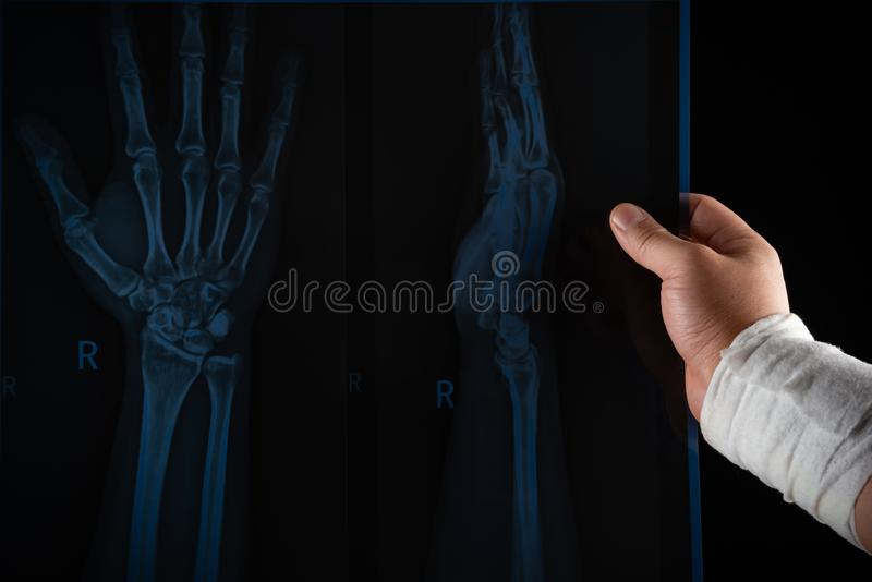 Studio shot of man looking at an X-ray film with a wrapped hand medical & insurance concept royalty free stock image