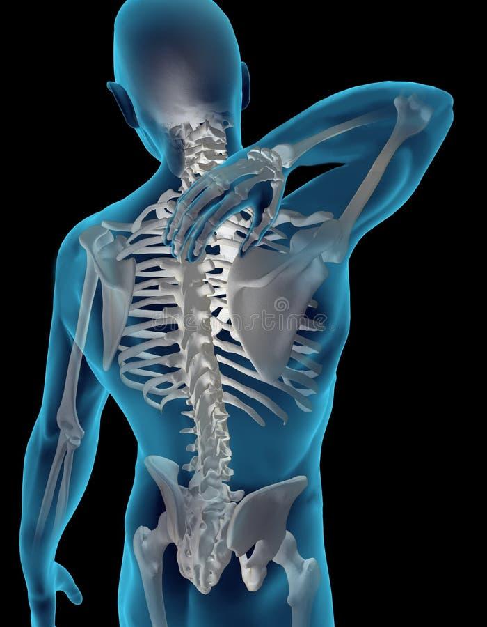 Stutzen-Schmerz stock abbildung