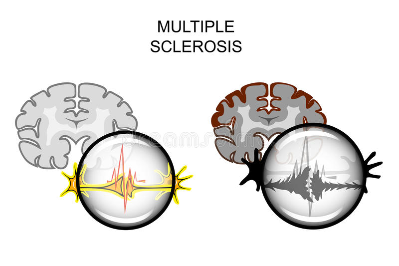 Stwardnienie Rozsiane mózg ilustracja wektor