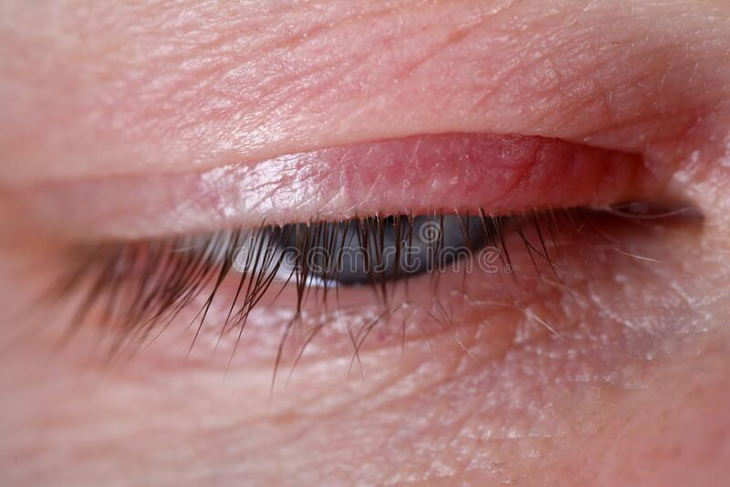 Sty na ludzkim zamknięciu oka choroba skóry fotografia royalty free