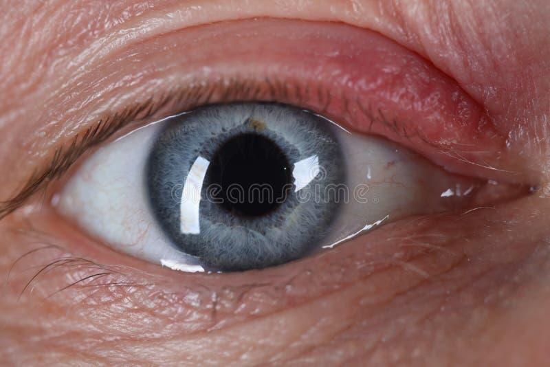 Sty na ludzkim zamknięciu oka choroba skóry zdjęcia stock