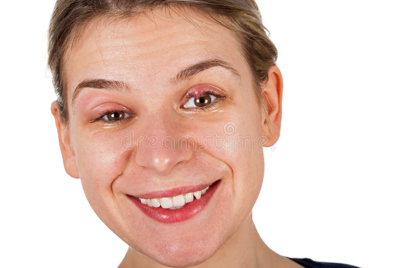 Stye on upper eyelids. Painful smile stock image