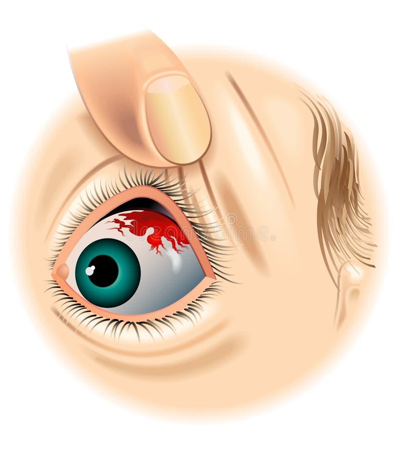 Subconjunctival кровотечение иллюстрация вектора