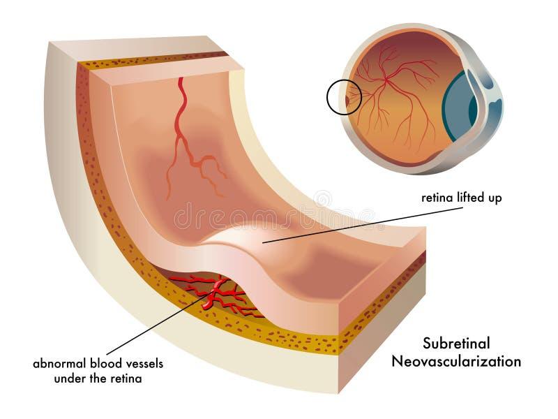 subretinal neovascularization vektor illustrationer