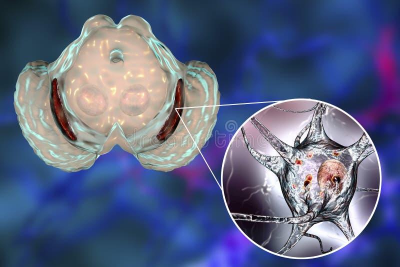 Substantia nigra i Parkinson' s-sjukdom royaltyfri illustrationer