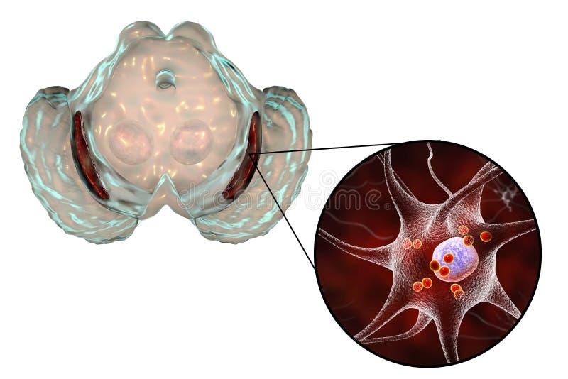 Substantia nigra in Parkinson& x27;s disease vector illustration