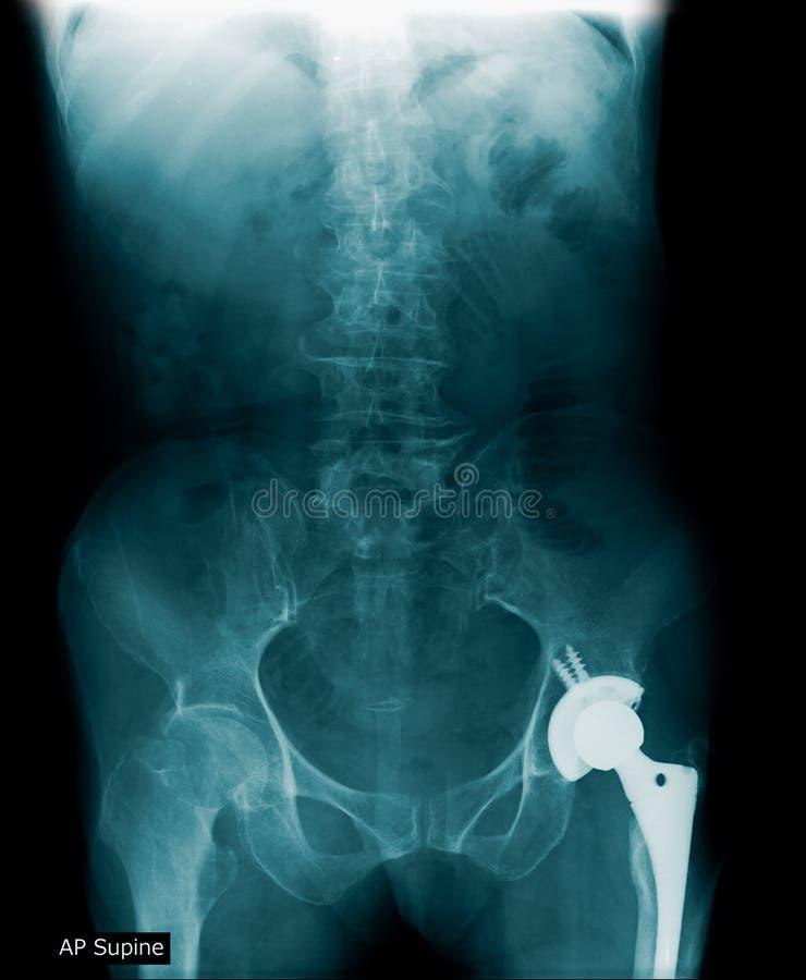 Substitui??o anca da imagem do raio X fotos de stock royalty free